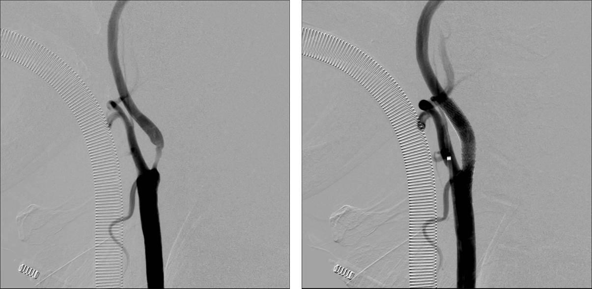 プラーク 頸 改善 動脈